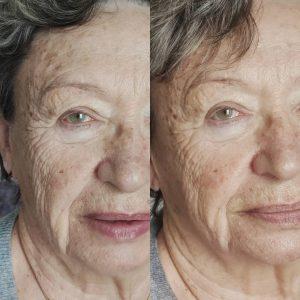 Soin Nuskin® anti-âge, peau réhydratée et repulpée dès la première séance.