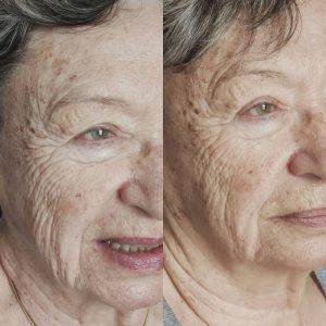 Soin visage à faire en cure pour un résultat optimum.