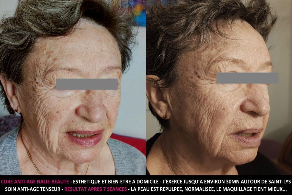 Cure anti-âge Nalie beauté bien-être - Soins esthétiques et massages bien-être à domicile, jusqu'à environ 30mn autour de Saint-Lys - Résultat après 7 séances, la peau est repulpée, normalisée, le maquillage tient mieux...